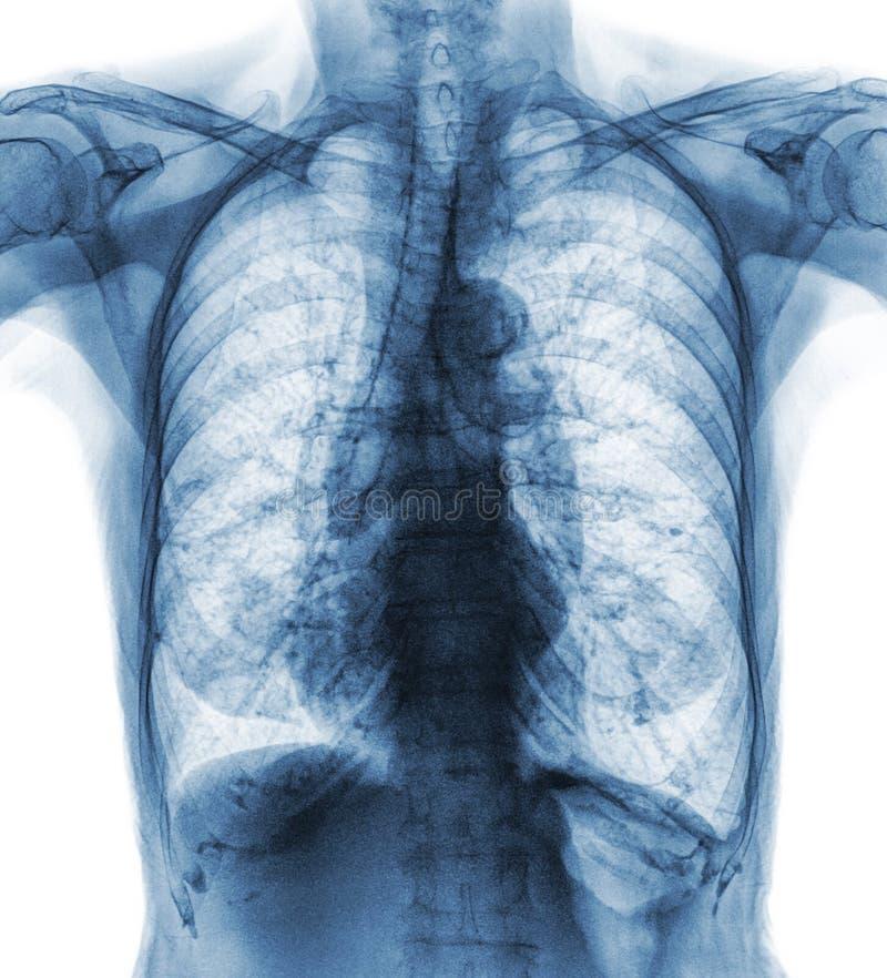 老患者正常胸部X光  您能看的石灰化在肋骨,气管,支气管 正面图 免版税库存图片