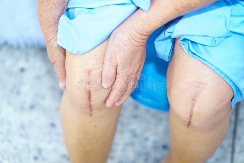 耐心亚裔资深或年长老妇人的妇女在护理医院显示她伤痕在床上的外科膝盖手术 库存图片