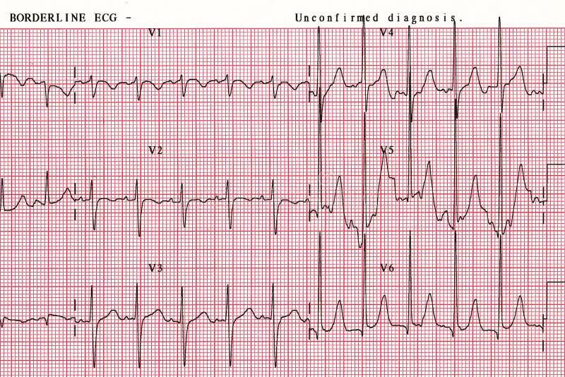 耐心` s心脏波浪图,是帮助医师的工具分析数据在医院 库存照片