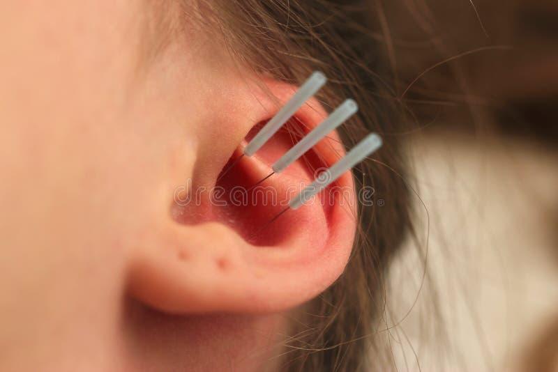 耳朵,有孔的耳朵的针灸有三根针的 库存图片