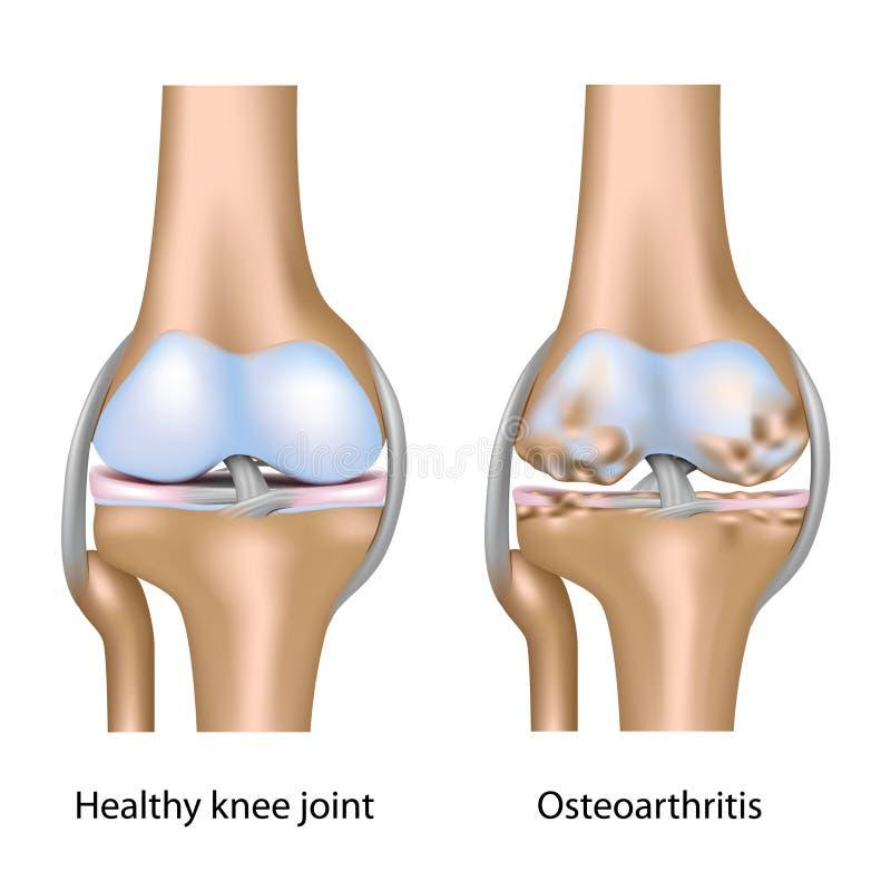 联合膝盖骨关节炎 库存例证