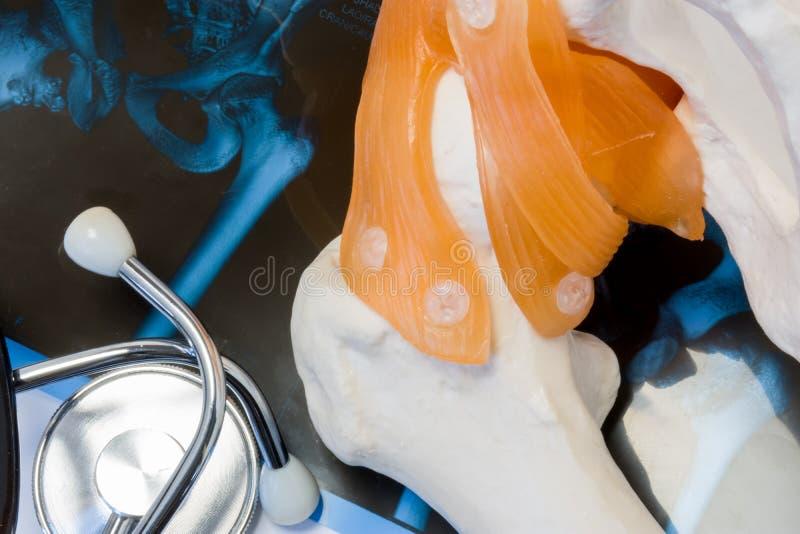 联接和骨头概念照片疾病诊断  篡改检查或由听诊器上弦与斜端杆结点和股骨审查在解剖 免版税库存照片