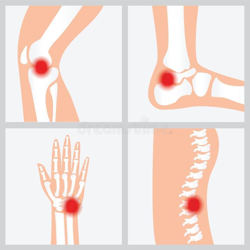 联接和骨头的疾病 向量例证