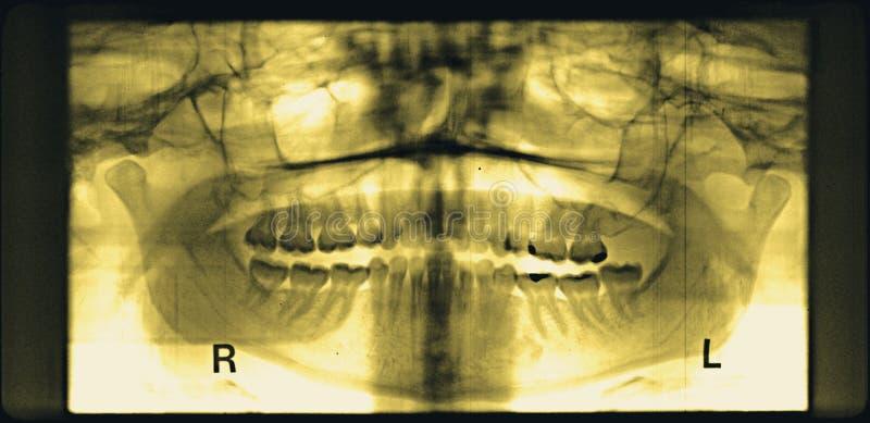 联接TMJ黄色的损坏的下颌侵蚀全景  库存图片