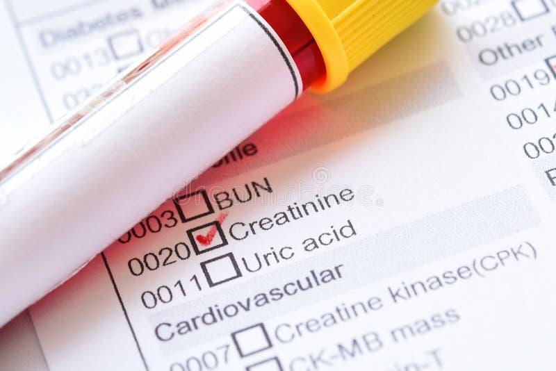 肌氨酸酐测试的血样 图库摄影
