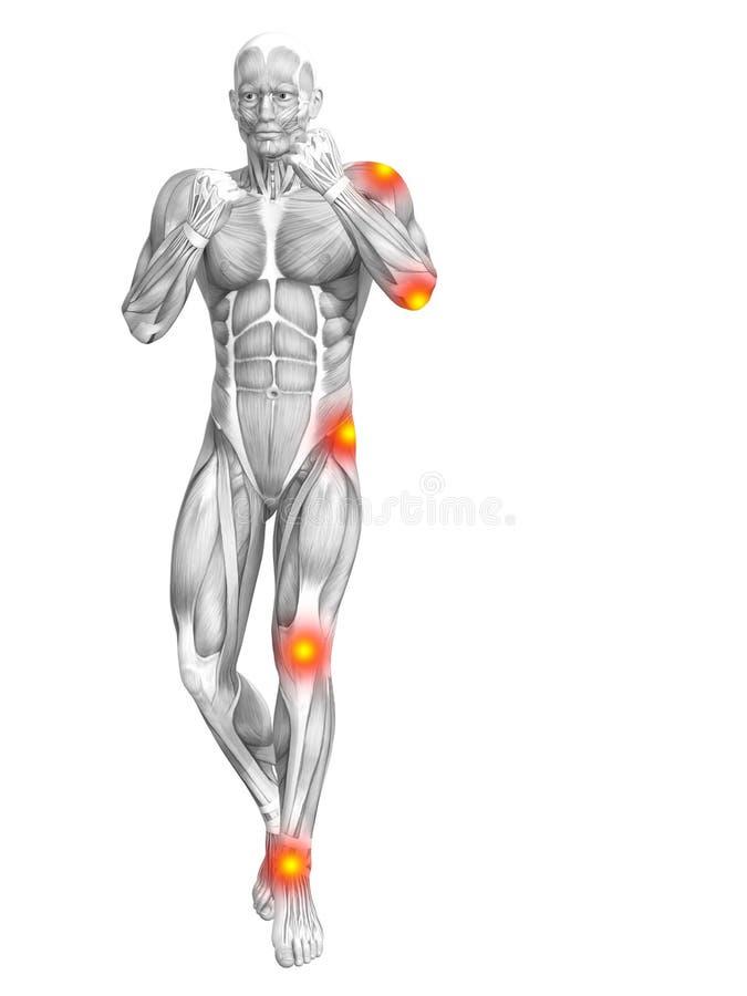 肌肉解剖学红色和黄斑炎症 库存例证