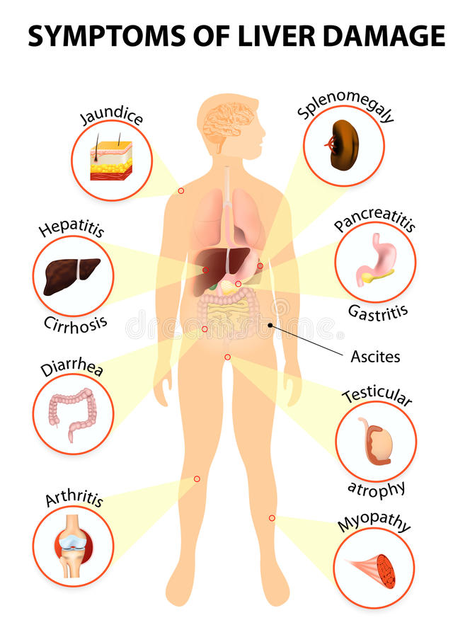 肝脏病的症状 向量例证