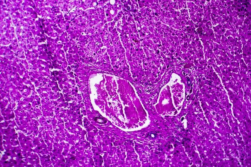 肝脏肿鼓,轻的微写器 图库摄影