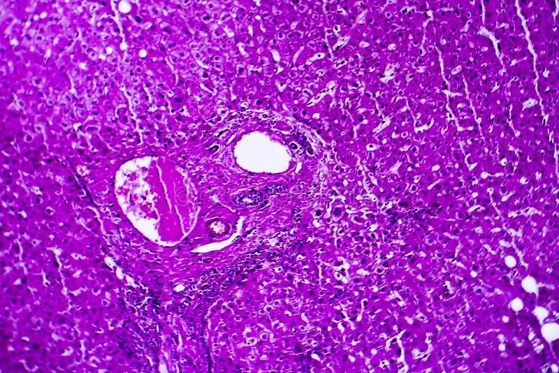 肝脏肿鼓,轻的微写器 免版税库存图片