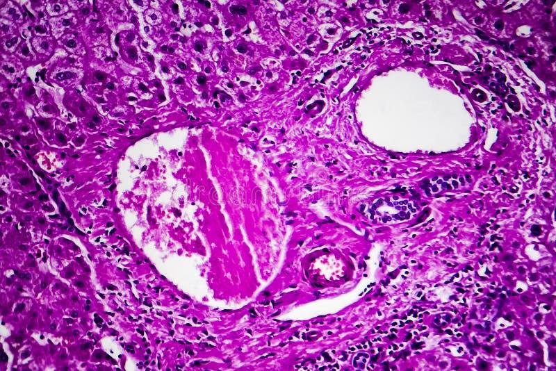 肝脏肿鼓,轻的微写器 免版税库存照片