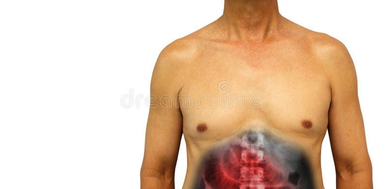 结肠癌和小肠阻碍 有X-射线展示小肠的人的腹部膨胀了由于阻碍 查出的返回 免版税库存照片