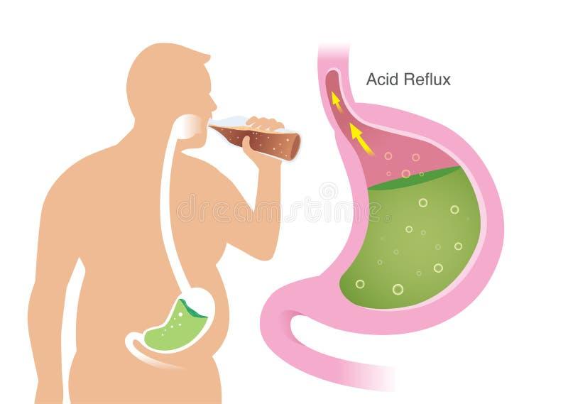肥胖人民剪影有酸反射问题在从饮料成碳酸盐的饮料的胃 库存例证