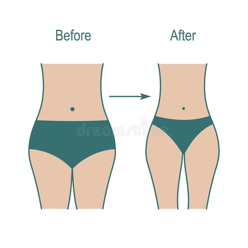 肥胖和亭亭玉立的妇女形象,重量在健身以后的减重分类 皇族释放例证