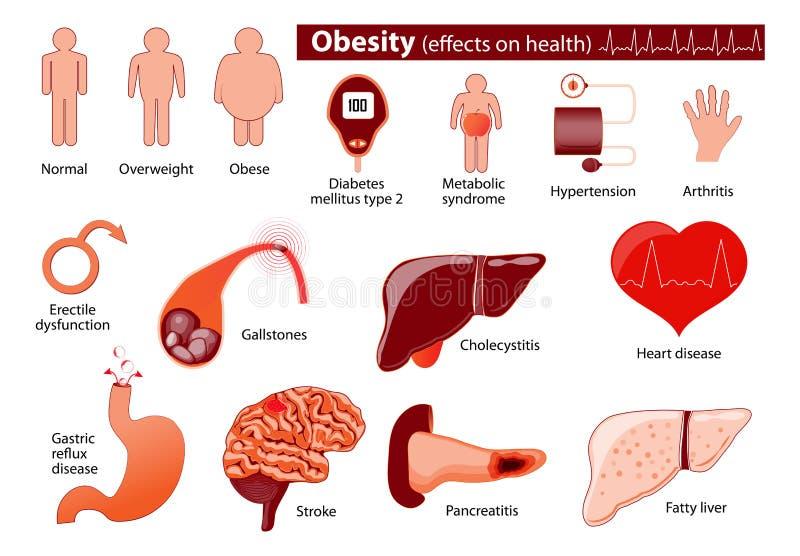 肥胖病和超重infographic 向量例证