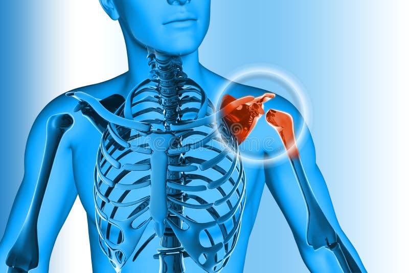 肩膀痛苦-疼的创伤 向量例证