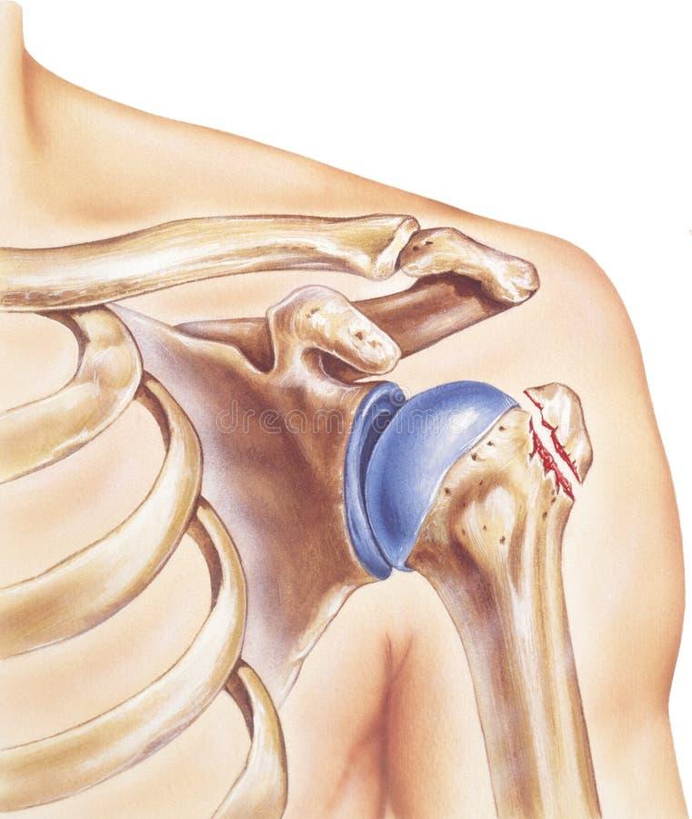 肩膀-打破的更加伟大的节结 库存例证