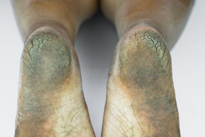 肮脏脚或破裂的脚跟孤立在白色背景、医疗或者脚人民的健康,医疗中心脚跟或脚 免版税库存图片
