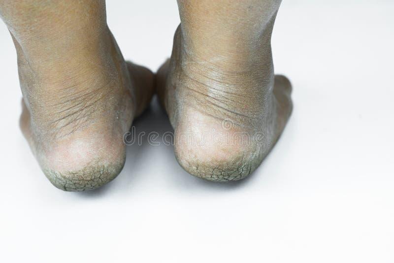肮脏脚或破裂的脚跟孤立在白色背景、医疗或者脚人民的健康,医疗中心脚跟或脚 库存照片