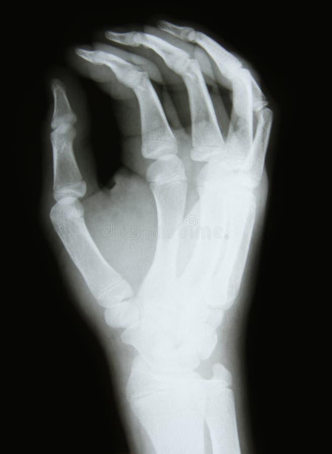 肱骨图象光芒x 库存照片