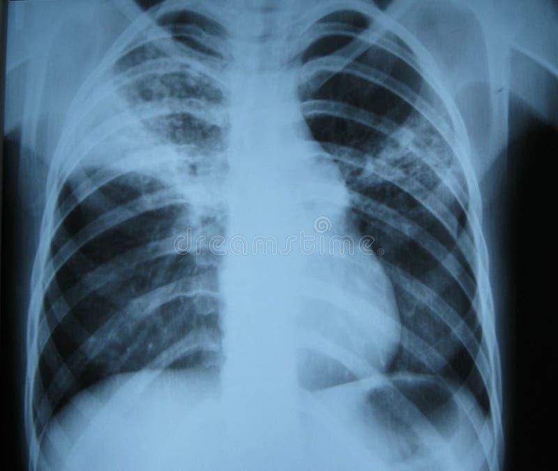 肺光芒x 免版税库存图片