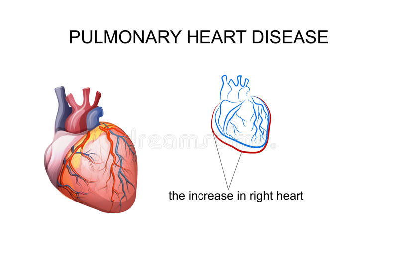 肺心脏病 皇族释放例证