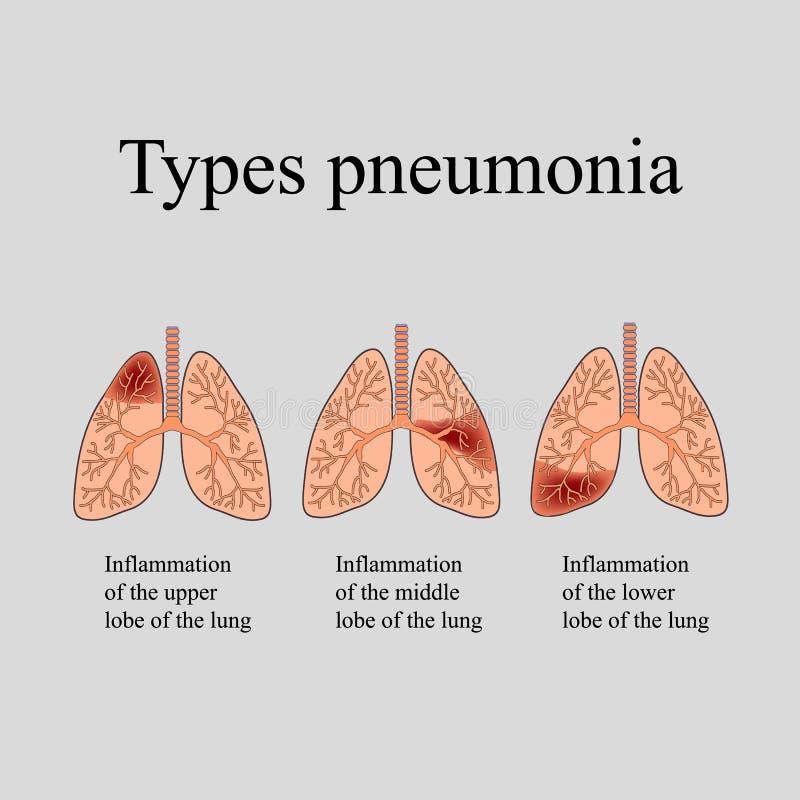 肺炎 人的肺的解剖结构 肺炎的类型 在灰色背景的传染媒介例证 向量例证