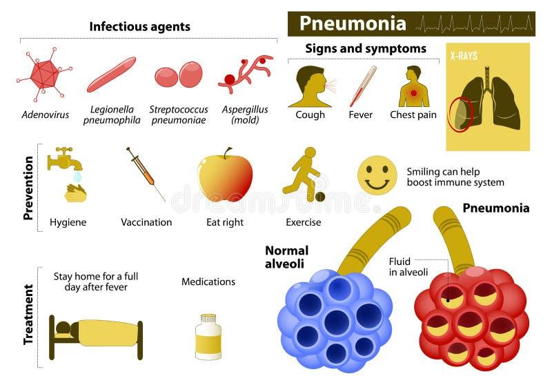 肺炎 向量例证