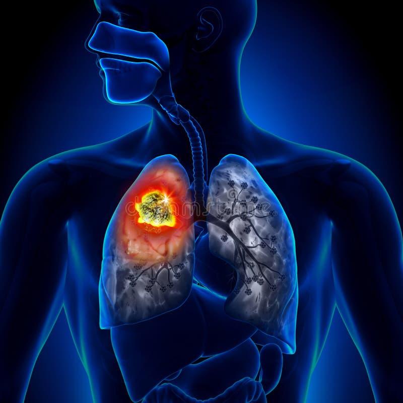 肺癌-肿瘤 向量例证