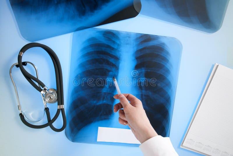 肺的X-射线图象 免版税库存照片