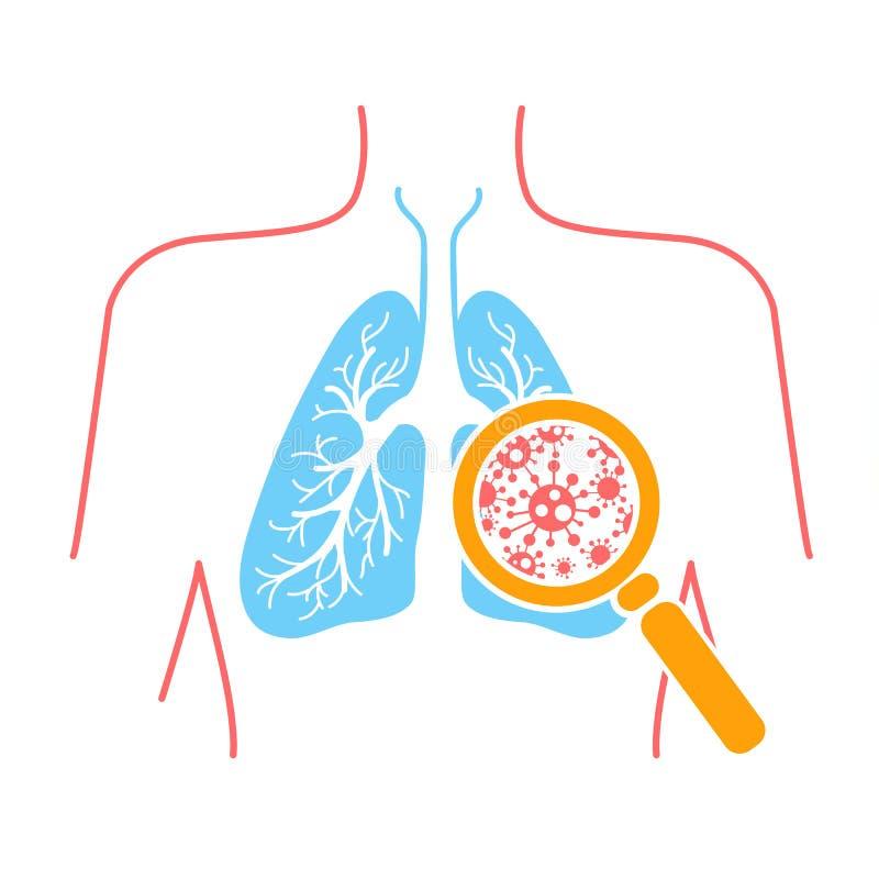 肺肺炎象  向量例证