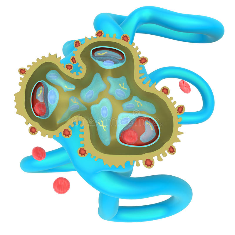 肾小球性肾炎 向量例证