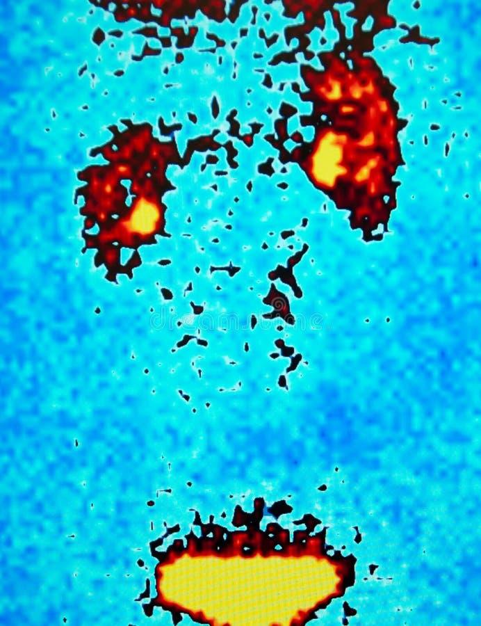 肾脏流程,核医学 免版税库存照片