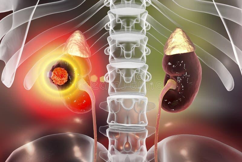 肾脏癌症治疗概念 向量例证