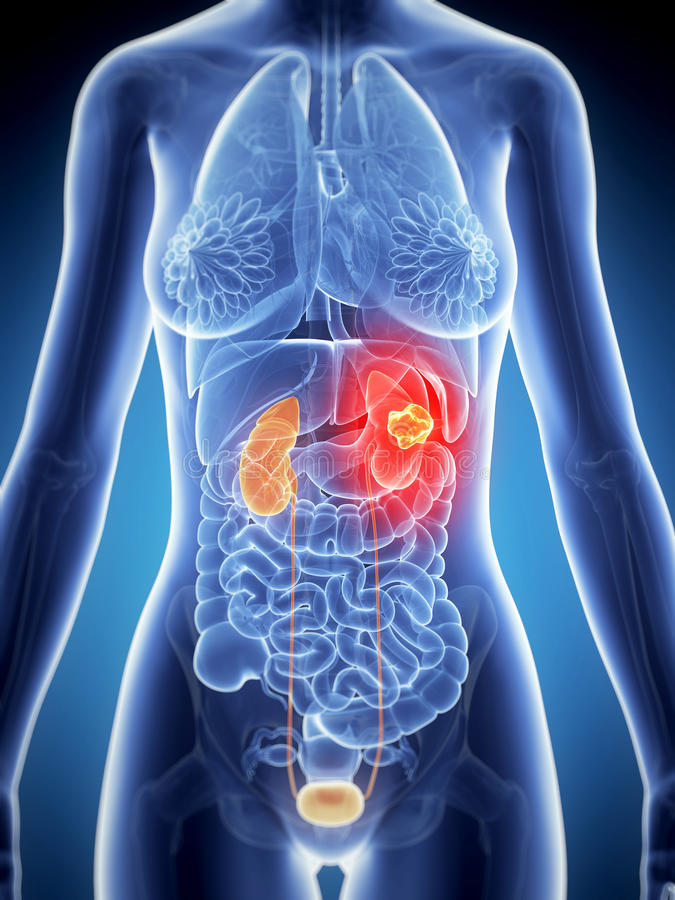 肾脏癌症 向量例证