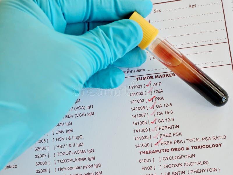 肿瘤制造商测试 免版税库存照片