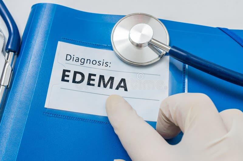 肿鼓-在蓝色文件夹的淋巴诊断与听诊器 免版税库存照片