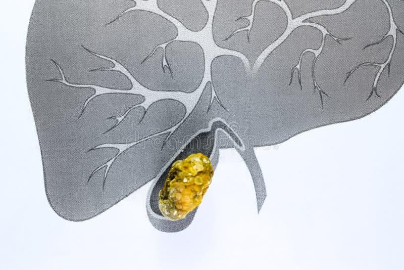 胆囊石头,概要描述,大型胆结石,胆结石疾病的结果 免版税库存照片