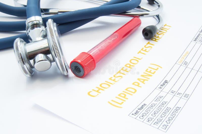 胆固醇测试油脂盘区分析结果、试管有血液的和一个医疗听诊器谎言在桌上 diagnosi的概念 免版税库存图片