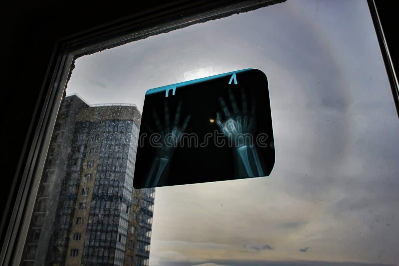 背景黑色设计太阳蚀的例证 视力保护是没有例外 太阳的观察通过放射线照相手 免版税库存照片