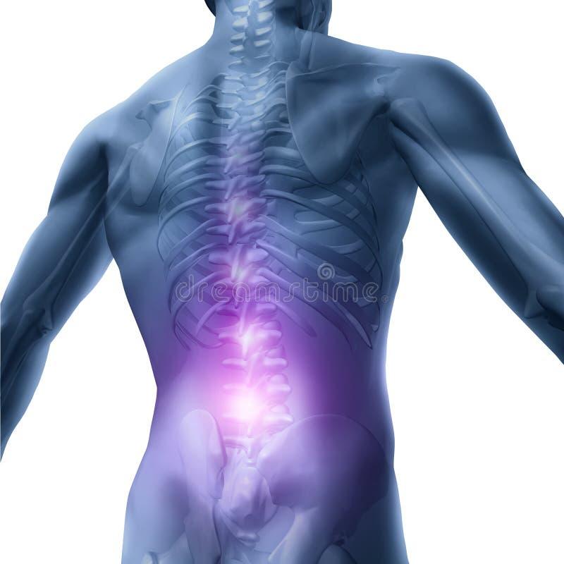 背部毛病 向量例证