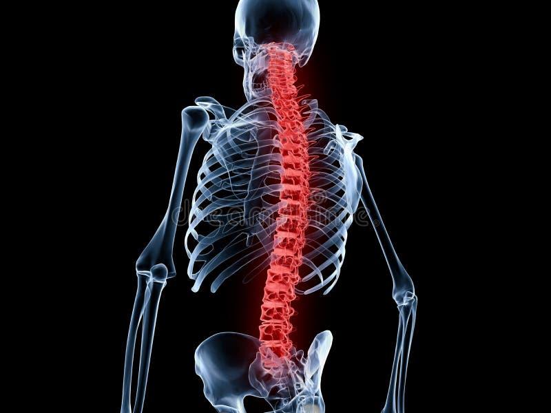 背部疼痛,脊椎 皇族释放例证