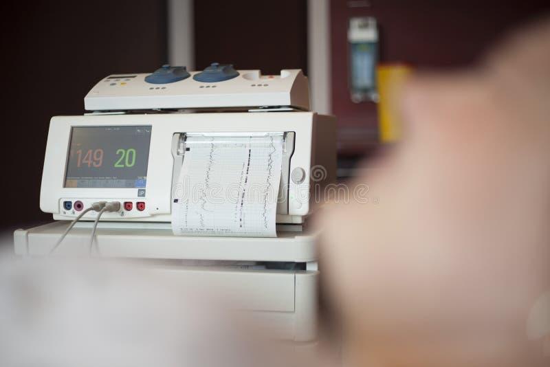 胎儿心跳显示器,与copyspace的cardiotocography 免版税库存照片