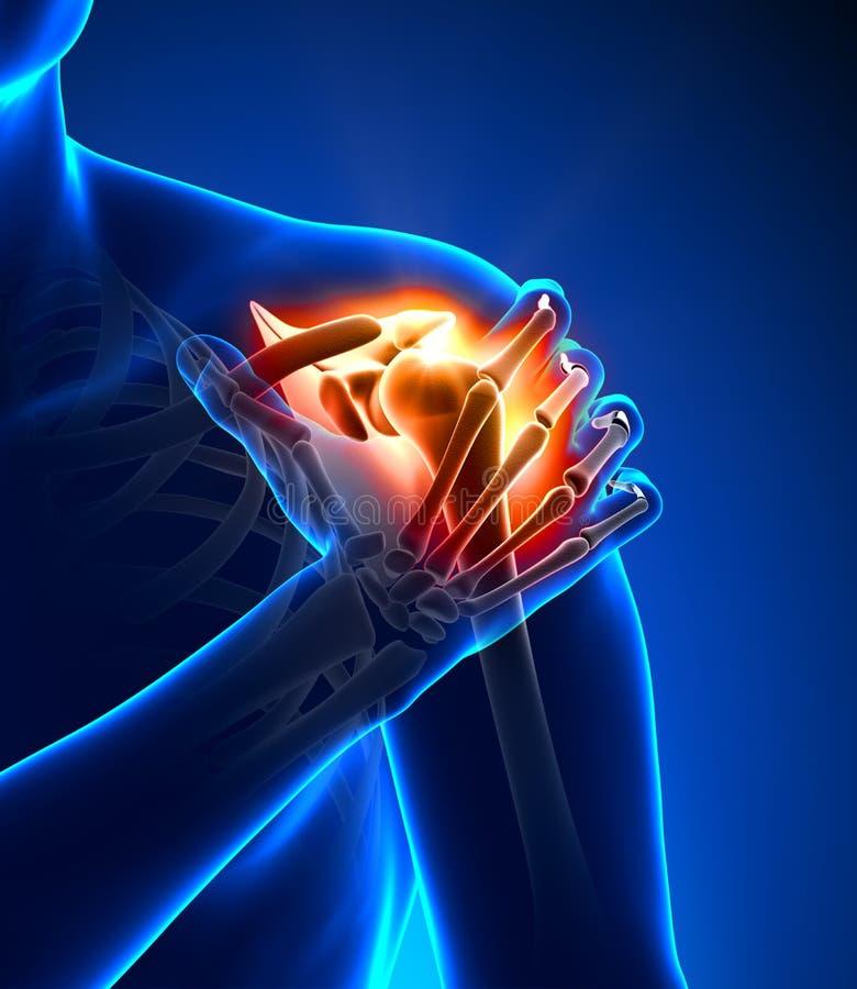 肩膀痛苦-细节 向量例证