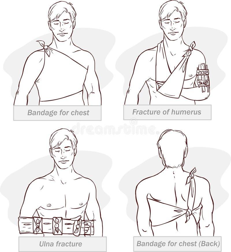 胸口的,肱骨破裂,尺骨破裂,胸口的绷带绷带(染黑白色) 库存例证