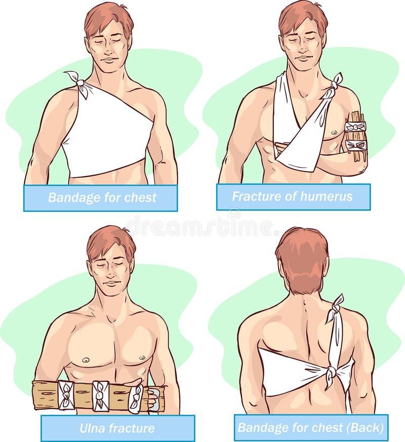 胸口的,肱骨破裂,尺骨破裂,胸口的绷带绷带 库存例证