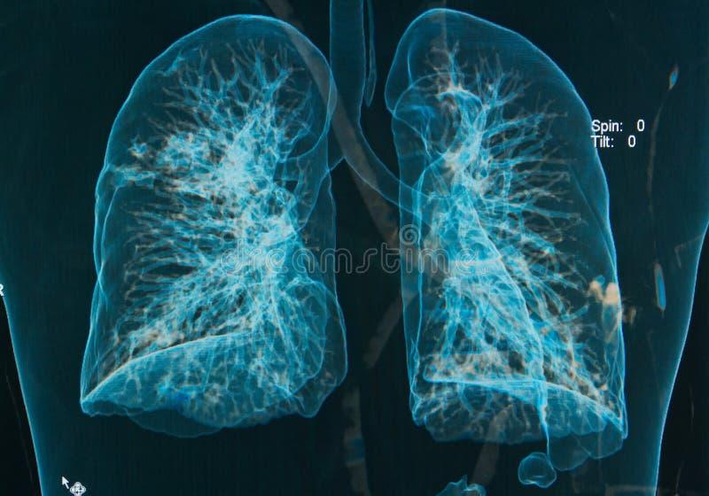 胸部X光肺3d图象 免版税库存照片
