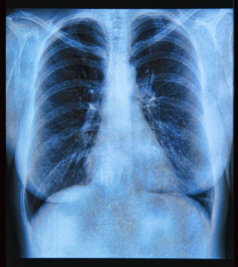 胸部X光图象 免版税库存照片