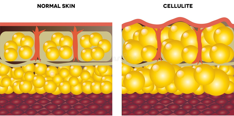 脂肪团和正常皮肤 库存例证