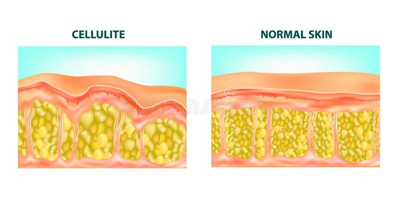 脂肪团形成 向量例证