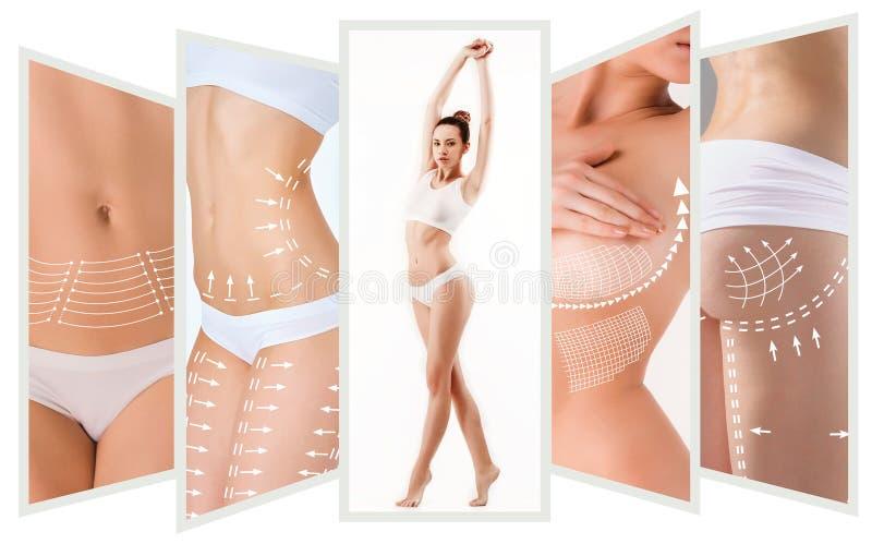 脂肪团撤除计划 在少妇身体的白色标号 免版税库存照片